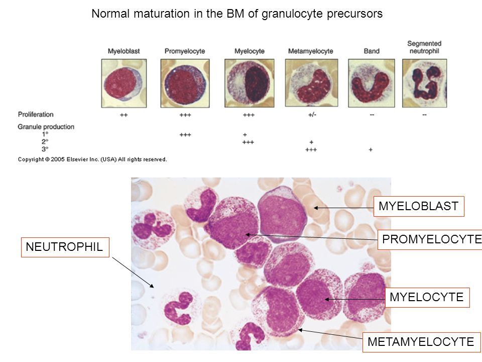 MYELOBLAST PROMYELOCYTE MYELOCYTE METAMYELOCYTE NEUTROPHIL Normal maturation in the BM of granulocyte precursors