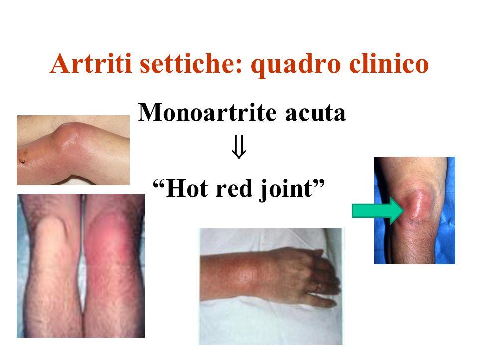 Artriti settiche: quadro clinico Monoartrite acuta Hot red joint