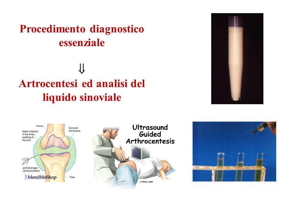Procedimento diagnostico essenziale Artrocentesi ed analisi del liquido sinoviale