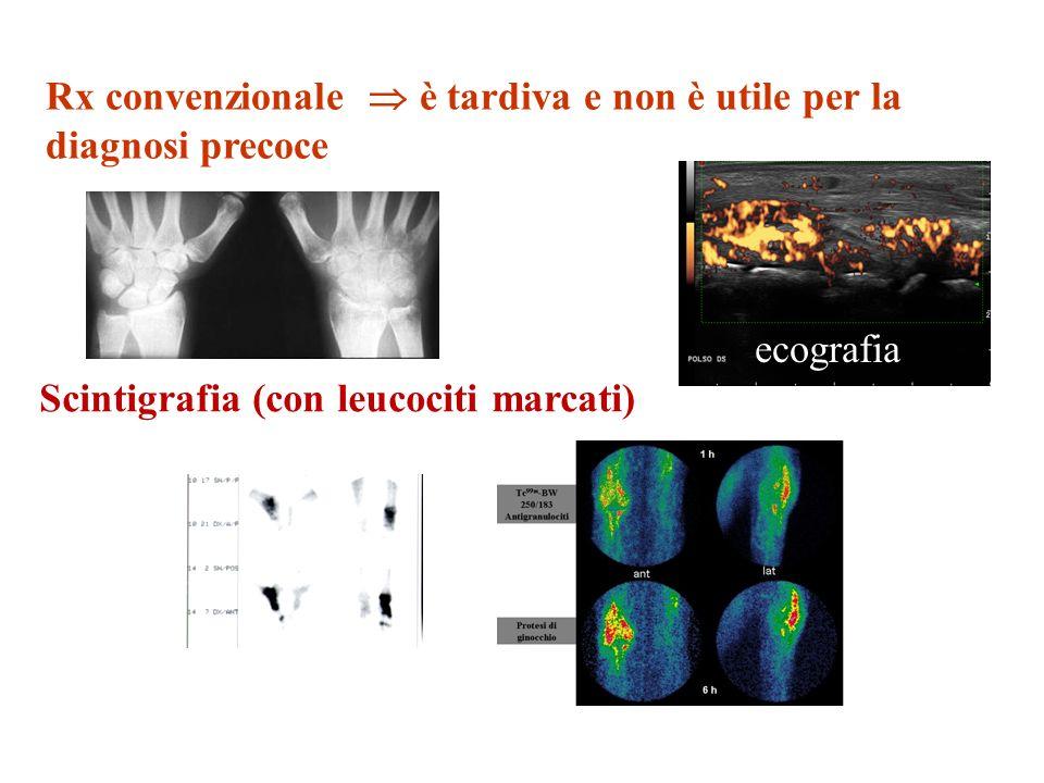 Rx convenzionale è tardiva e non è utile per la diagnosi precoce Scintigrafia (con leucociti marcati) ecografia