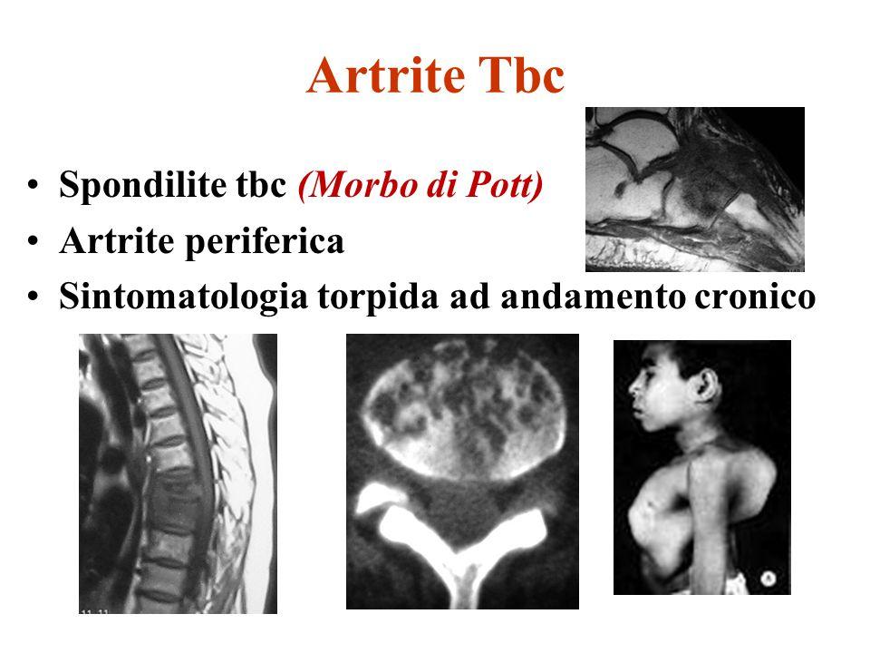 Artrite Tbc Spondilite tbc (Morbo di Pott) Artrite periferica Sintomatologia torpida ad andamento cronico