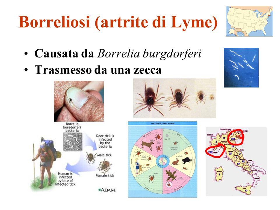 Borreliosi (artrite di Lyme) Causata da Borrelia burgdorferi Trasmesso da una zecca