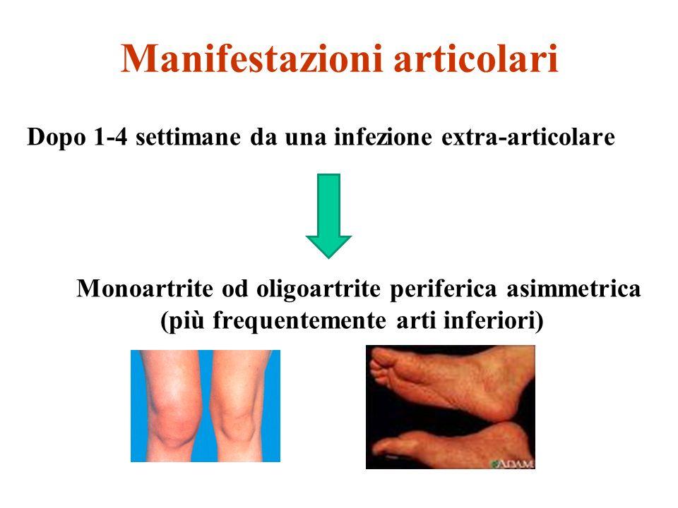 Manifestazioni articolari Dopo 1-4 settimane da una infezione extra-articolare Monoartrite od oligoartrite periferica asimmetrica (più frequentemente