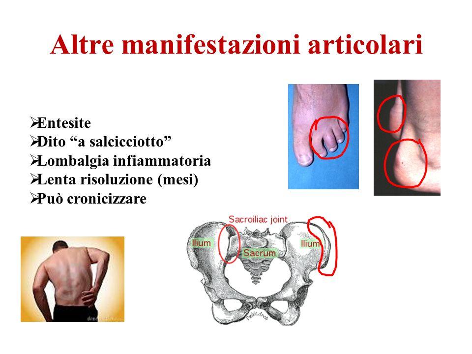 Altre manifestazioni articolari Entesite Dito a salcicciotto Lombalgia infiammatoria Lenta risoluzione (mesi) Può cronicizzare