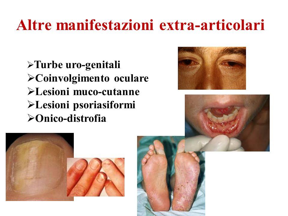 Altre manifestazioni extra-articolari Turbe uro-genitali Coinvolgimento oculare Lesioni muco-cutanne Lesioni psoriasiformi Onico-distrofia