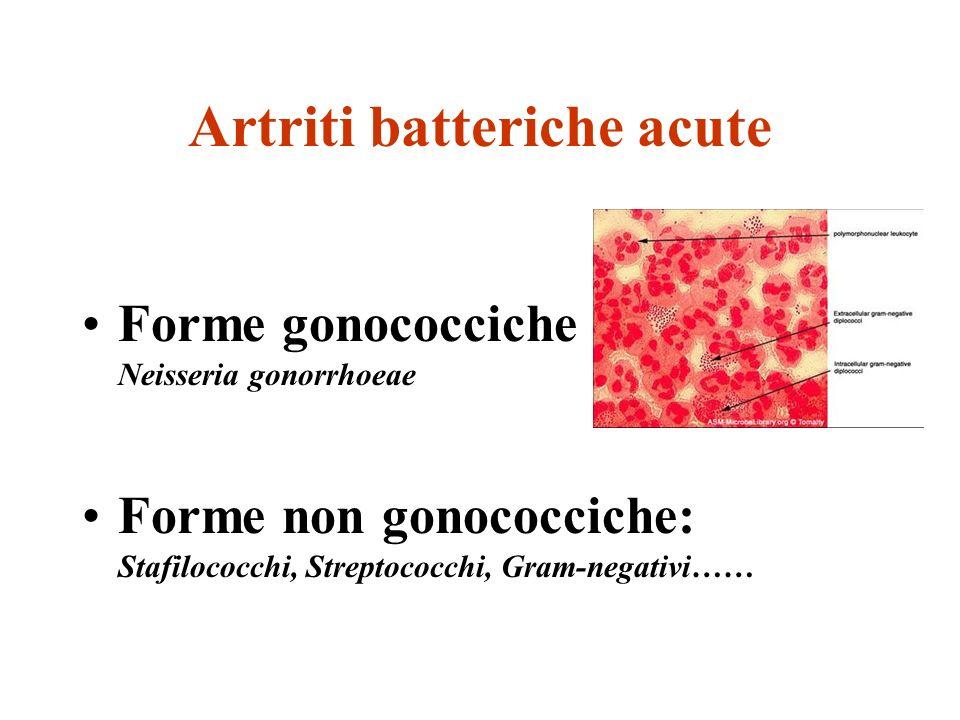 Artriti batteriche acute Forme gonococciche Neisseria gonorrhoeae Forme non gonococciche: Stafilococchi, Streptococchi, Gram-negativi……