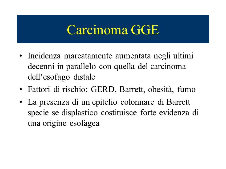 Carcinoma GGE Incidenza marcatamente aumentata negli ultimi decenni in parallelo con quella del carcinoma dellesofago distale Fattori di rischio: GERD