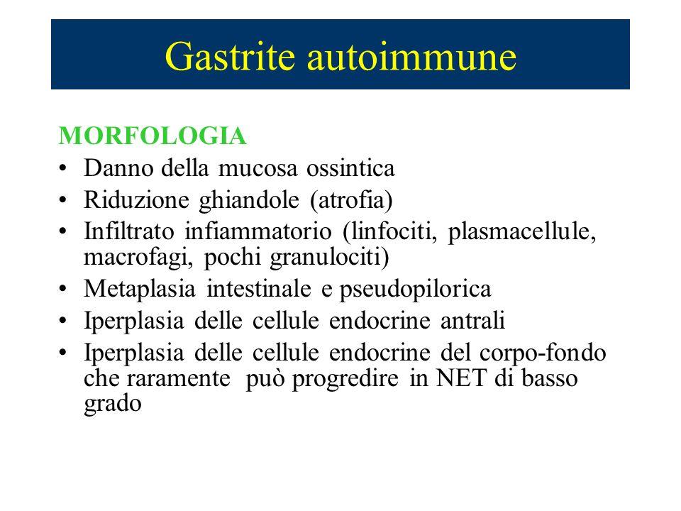 Gastrite autoimmune MORFOLOGIA Danno della mucosa ossintica Riduzione ghiandole (atrofia) Infiltrato infiammatorio (linfociti, plasmacellule, macrofag