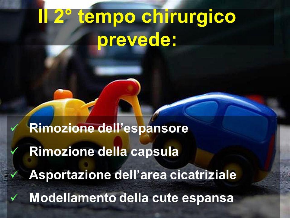 Rimozione dellespansore Rimozione della capsula Asportazione dellarea cicatriziale Modellamento della cute espansa II 2° tempo chirurgico prevede: