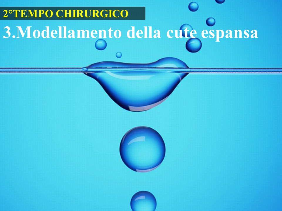 3.Modellamento della cute espansa 2°TEMPO CHIRURGICO