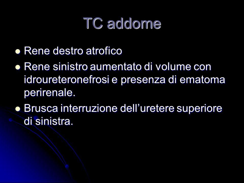 TC addome Rene destro atrofico Rene destro atrofico Rene sinistro aumentato di volume con idroureteronefrosi e presenza di ematoma perirenale. Rene si