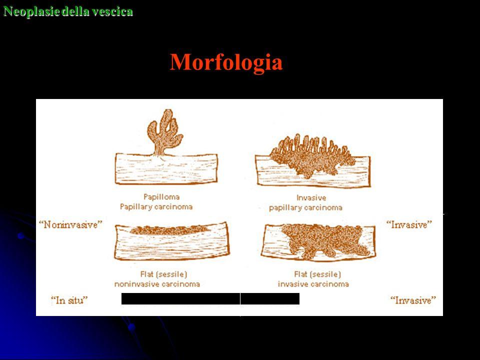 Morfologia Neoplasie della vescica