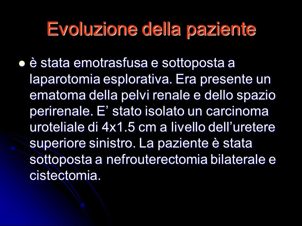 Evoluzione della paziente è stata emotrasfusa e sottoposta a laparotomia esplorativa. Era presente un ematoma della pelvi renale e dello spazio perire