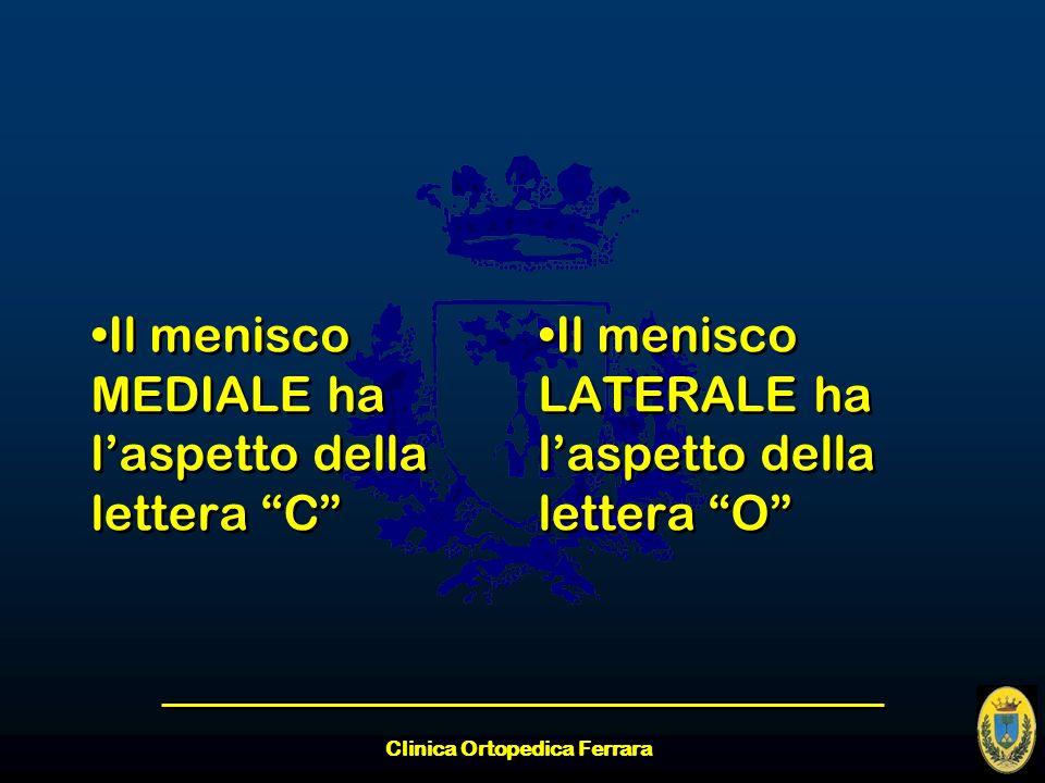 Clinica Ortopedica Ferrara Il menisco MEDIALE ha laspetto della lettera C Il menisco LATERALE ha laspetto della lettera O