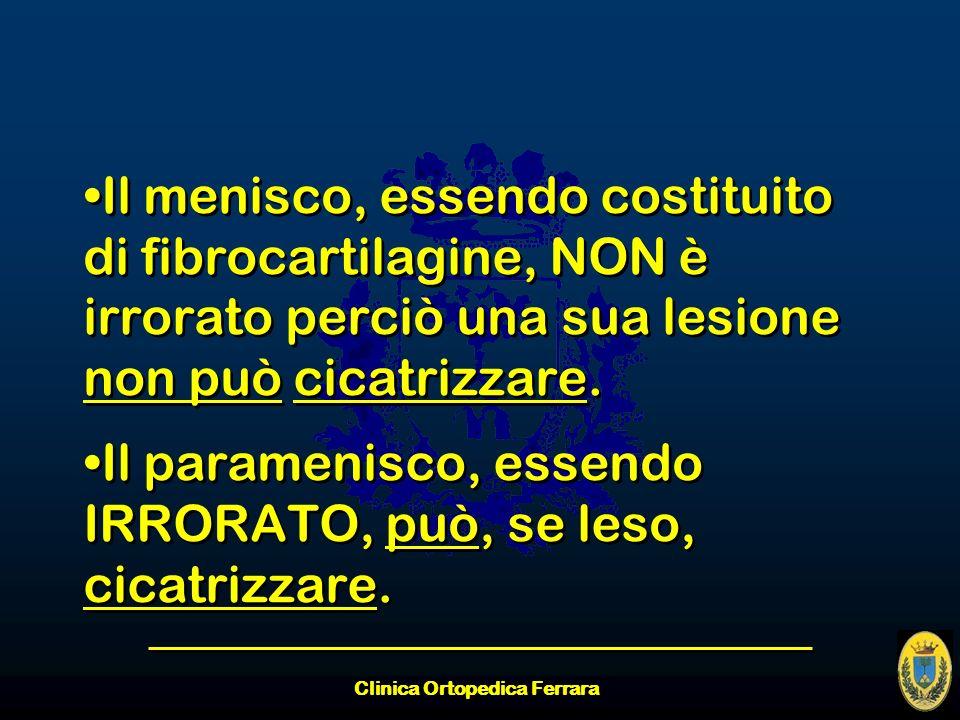 Il menisco, essendo costituito di fibrocartilagine, NON è irrorato perciò una sua lesione non può cicatrizzare. Il paramenisco, essendo IRRORATO, può,
