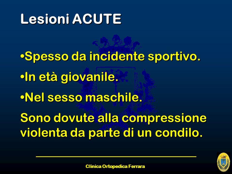 Clinica Ortopedica Ferrara Lesioni ACUTE Spesso da incidente sportivo. In età giovanile. Nel sesso maschile. Sono dovute alla compressione violenta da