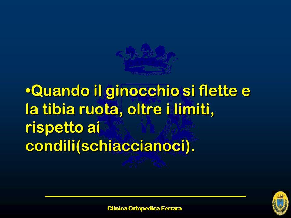 Clinica Ortopedica Ferrara Quando il ginocchio si flette e la tibia ruota, oltre i limiti, rispetto ai condili(schiaccianoci).