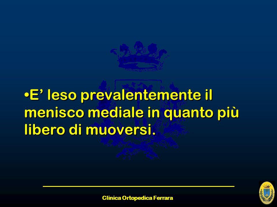 Clinica Ortopedica Ferrara E leso prevalentemente il menisco mediale in quanto più libero di muoversi.