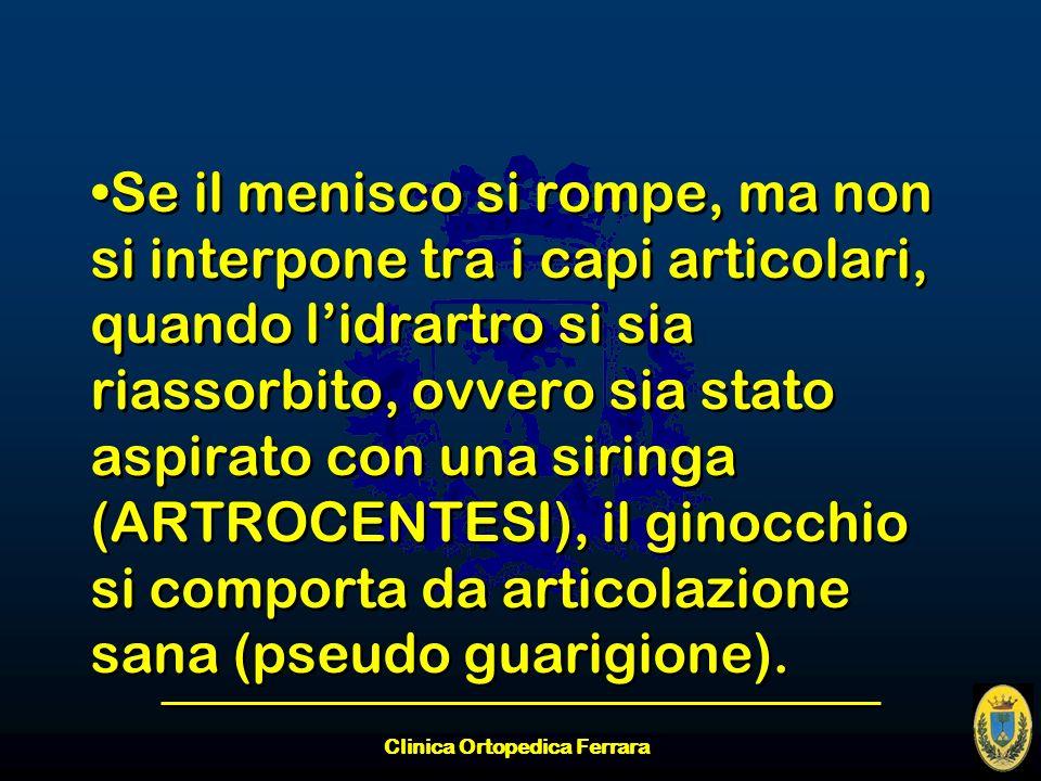 Clinica Ortopedica Ferrara Se il menisco si rompe, ma non si interpone tra i capi articolari, quando lidrartro si sia riassorbito, ovvero sia stato as