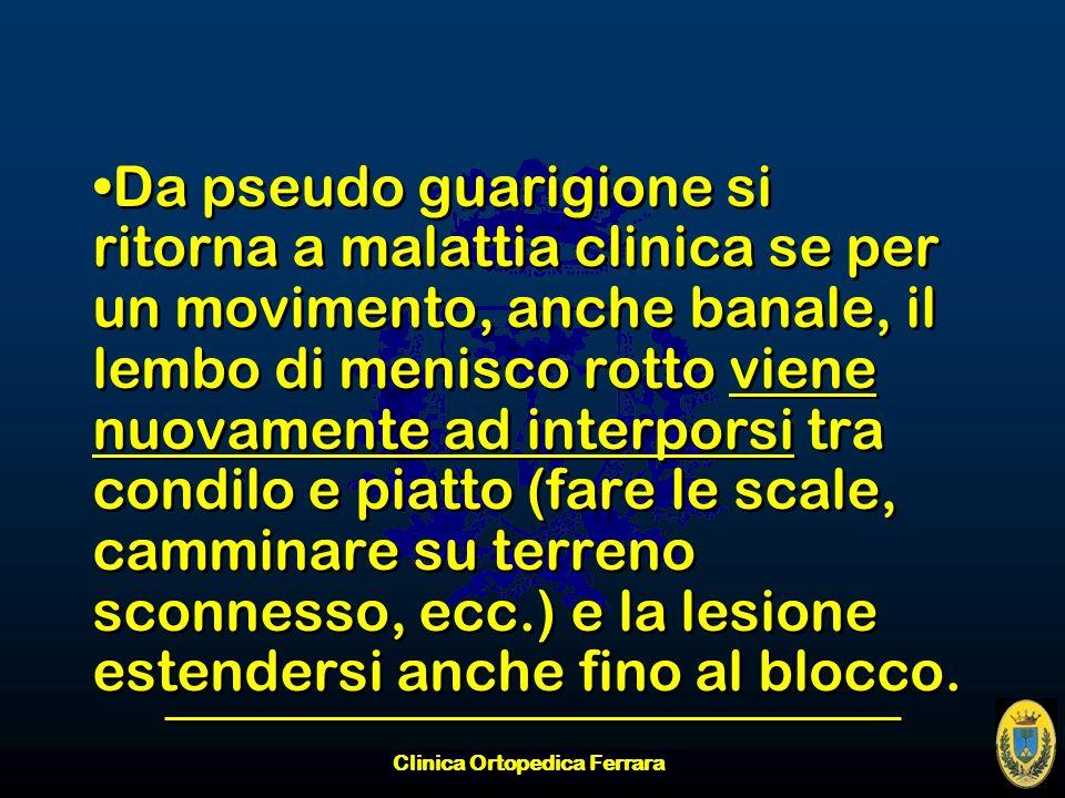Clinica Ortopedica Ferrara Da pseudo guarigione si ritorna a malattia clinica se per un movimento, anche banale, il lembo di menisco rotto viene nuova