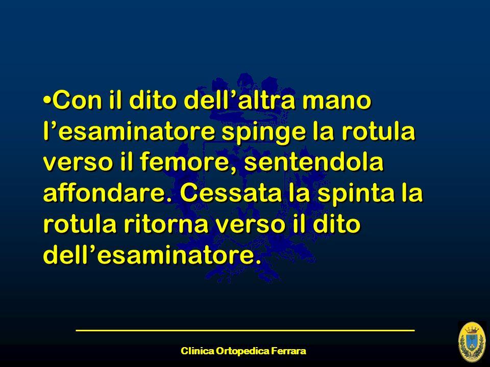 Clinica Ortopedica Ferrara Con il dito dellaltra mano lesaminatore spinge la rotula verso il femore, sentendola affondare. Cessata la spinta la rotula