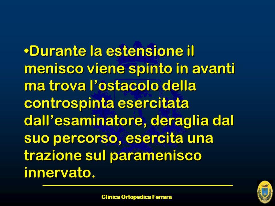 Clinica Ortopedica Ferrara Durante la estensione il menisco viene spinto in avanti ma trova lostacolo della controspinta esercitata dallesaminatore, d