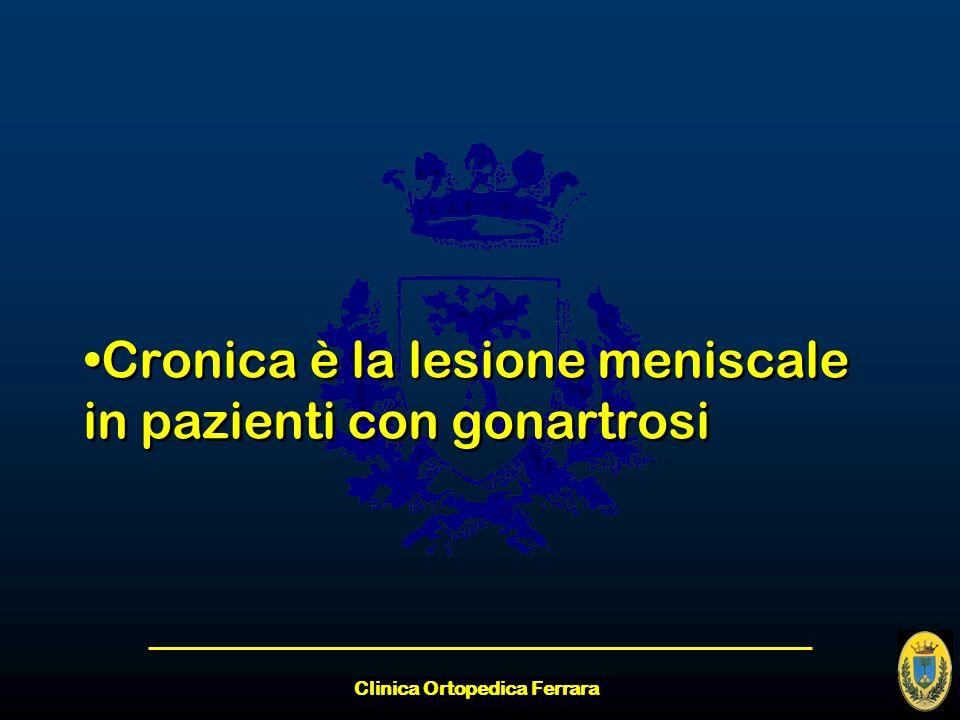Clinica Ortopedica Ferrara Cronica è la lesione meniscale in pazienti con gonartrosi
