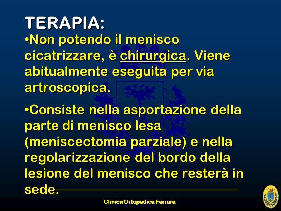 Clinica Ortopedica Ferrara TERAPIA: Non potendo il menisco cicatrizzare, è chirurgica. Viene abitualmente eseguita per via artroscopica. Consiste nell