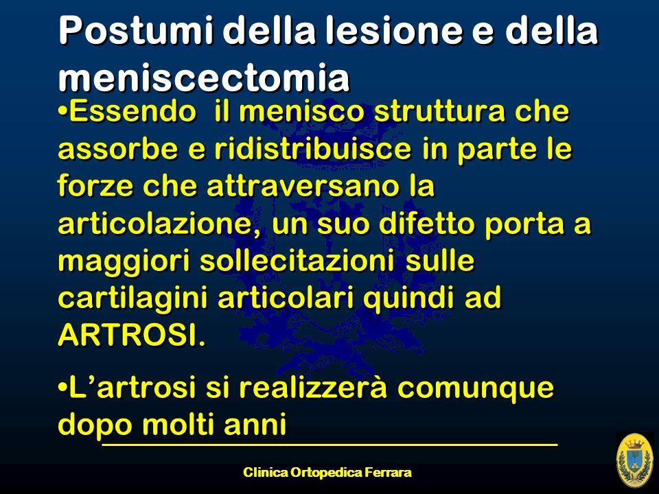 Clinica Ortopedica Ferrara Postumi della lesione e della meniscectomia Essendo il menisco struttura che assorbe e ridistribuisce in parte le forze che