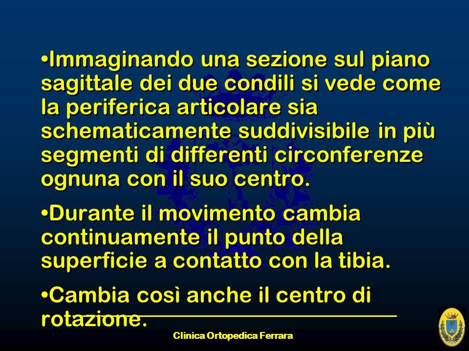 Clinica Ortopedica Ferrara Immaginando una sezione sul piano sagittale dei due condili si vede come la periferica articolare sia schematicamente suddi