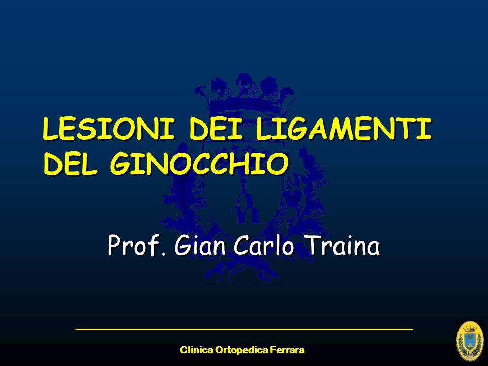 Clinica Ortopedica Ferrara Larticolazione del ginocchio è mantenuta stabile, oltre che dalla attività muscolare, da 4 importanti ligamenti: 1.COLLATERALE MEDIALE 2.COLLATERALE LATERALE 3.CROCIATO ANTERIORE 4.CROCIATO POSTERIORE 1.COLLATERALE MEDIALE 2.COLLATERALE LATERALE 3.CROCIATO ANTERIORE 4.CROCIATO POSTERIORE