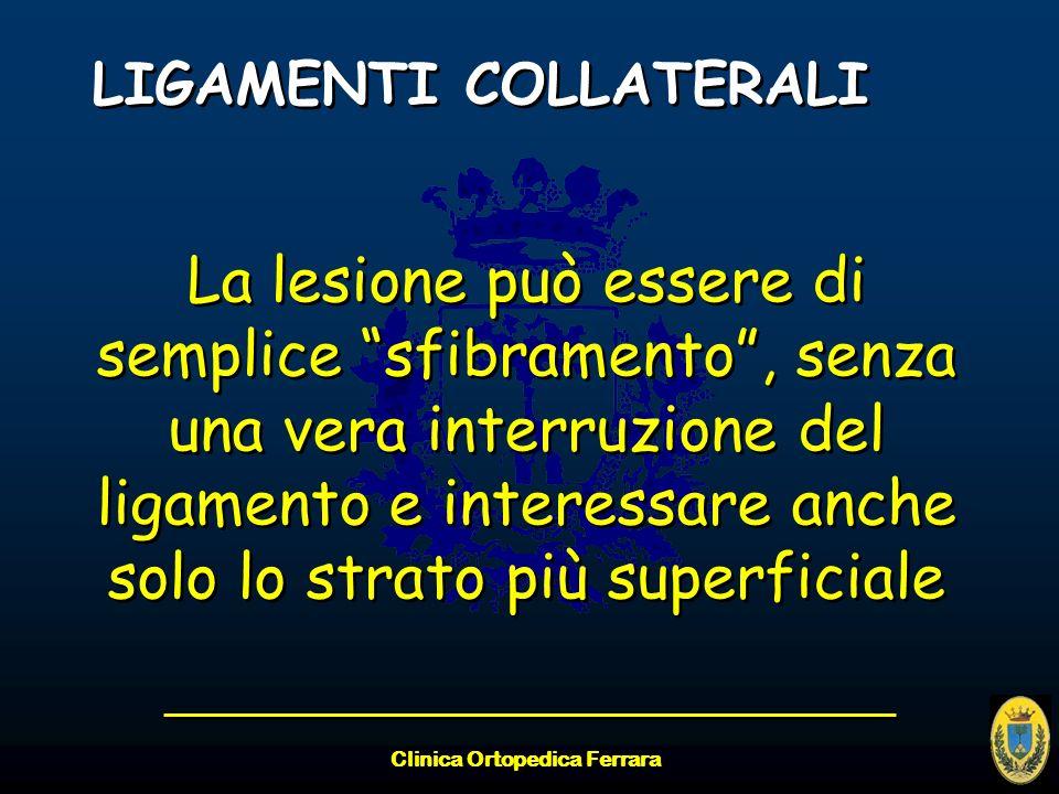 Clinica Ortopedica Ferrara LIGAMENTI COLLATERALI La lesione può essere di semplice sfibramento, senza una vera interruzione del ligamento e interessar