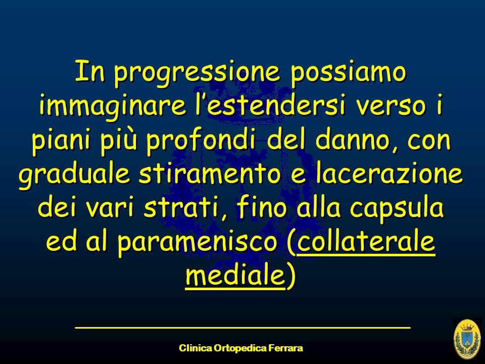 Clinica Ortopedica Ferrara In progressione possiamo immaginare lestendersi verso i piani più profondi del danno, con graduale stiramento e lacerazione