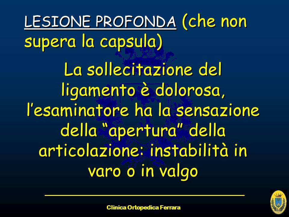 Clinica Ortopedica Ferrara LESIONE PROFONDA (che non supera la capsula) La sollecitazione del ligamento è dolorosa, lesaminatore ha la sensazione dell
