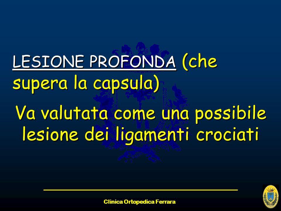 Clinica Ortopedica Ferrara LESIONE PROFONDA (che supera la capsula) Va valutata come una possibile lesione dei ligamenti crociati LESIONE PROFONDA (ch