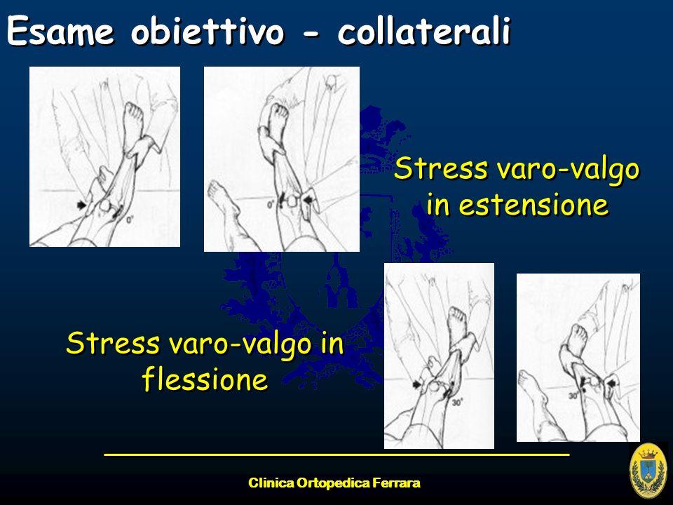 Clinica Ortopedica Ferrara Esame obiettivo - collaterali Stress varo-valgo in estensione Stress varo-valgo in flessione