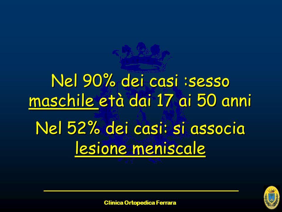 Clinica Ortopedica Ferrara Nel 90% dei casi :sesso maschile età dai 17 ai 50 anni Nel 52% dei casi: si associa lesione meniscale Nel 90% dei casi :ses