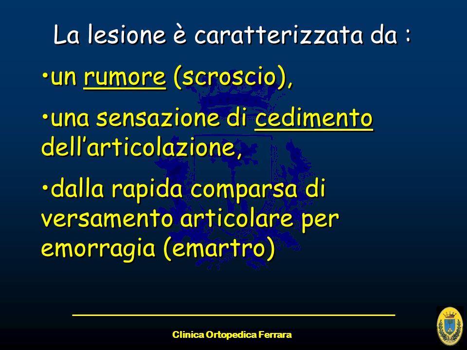 Clinica Ortopedica Ferrara La lesione è caratterizzata da : un rumore (scroscio), una sensazione di cedimento dellarticolazione, dalla rapida comparsa