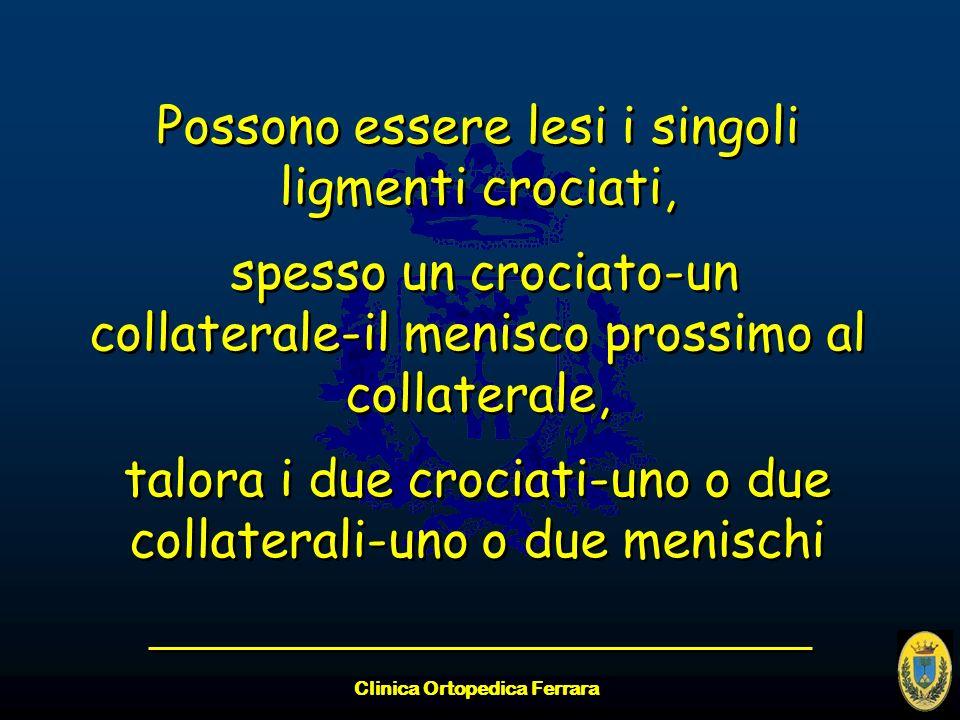 Clinica Ortopedica Ferrara Possono essere lesi i singoli ligmenti crociati, spesso un crociato-un collaterale-il menisco prossimo al collaterale, talo