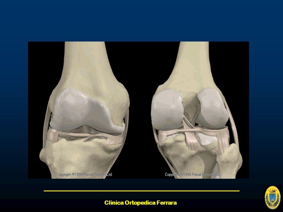 Clinica Ortopedica Ferrara Gradi di lesione (collaterali) I grado II grado III grado