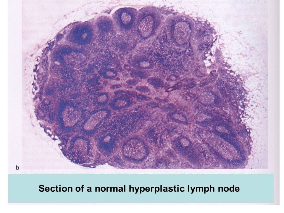 Types of non Hodgkins lymphoma Clinically Indolent / clinically aggressive (slow growth= low grade lymphoma (rapid growth and invasiveness = high grade lymphoma) B-cell / T-cell (immunophenotype) Histopathologic types Pattern of growth recalling primarily involved lymph node structure.
