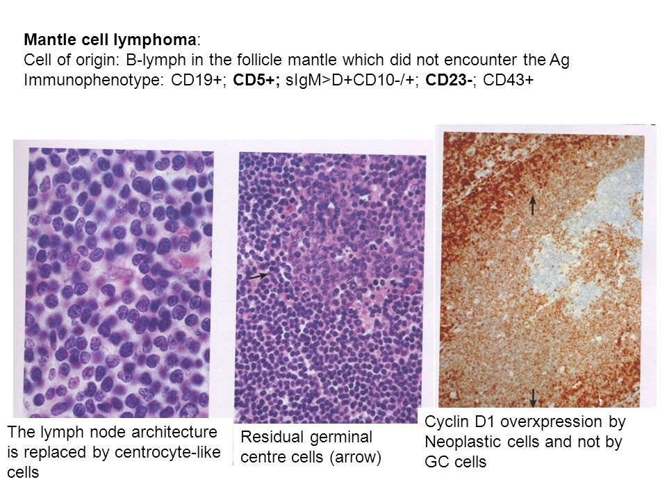 The lymph node architecture is replaced by centrocyte-like cells Residual germinal centre cells (arrow) Cyclin D1 overxpression by Neoplastic cells an