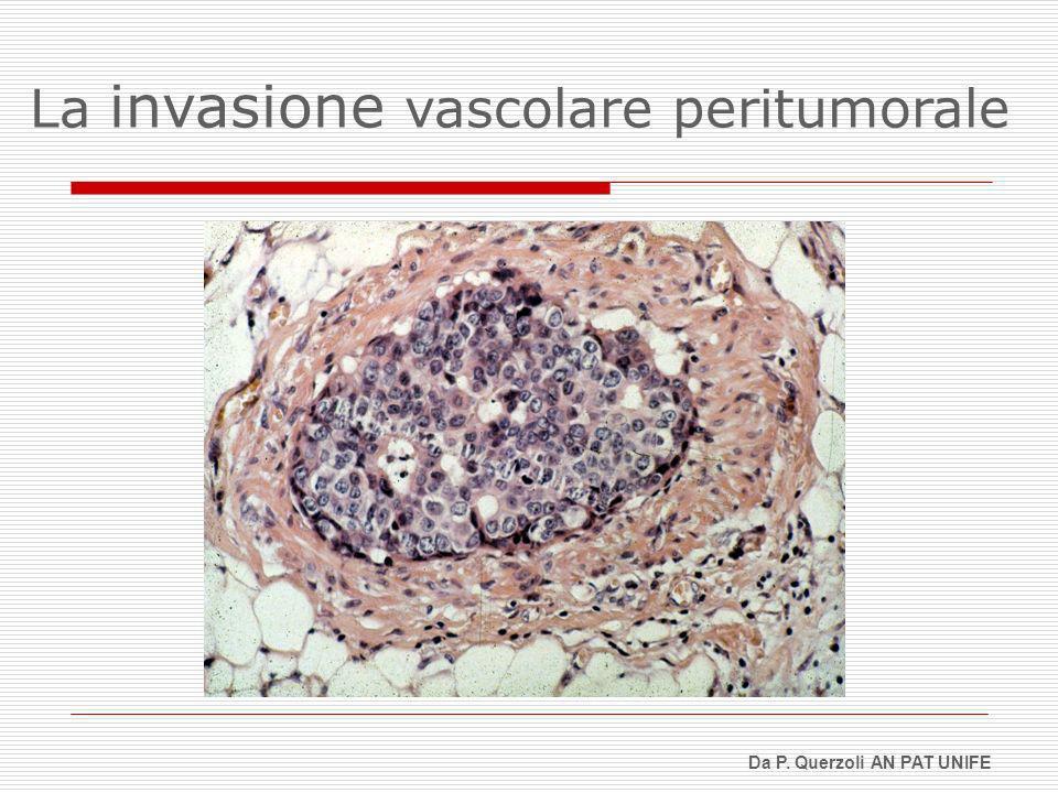 La invasione vascolare peritumorale Da P. Querzoli AN PAT UNIFE