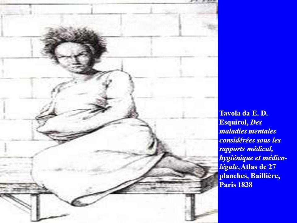 Tavola da E. D. Esquirol, Des maladies mentales considérées sous les rapports médical, hygiénique et médico- légale, Atlas de 27 planches, Baillière,
