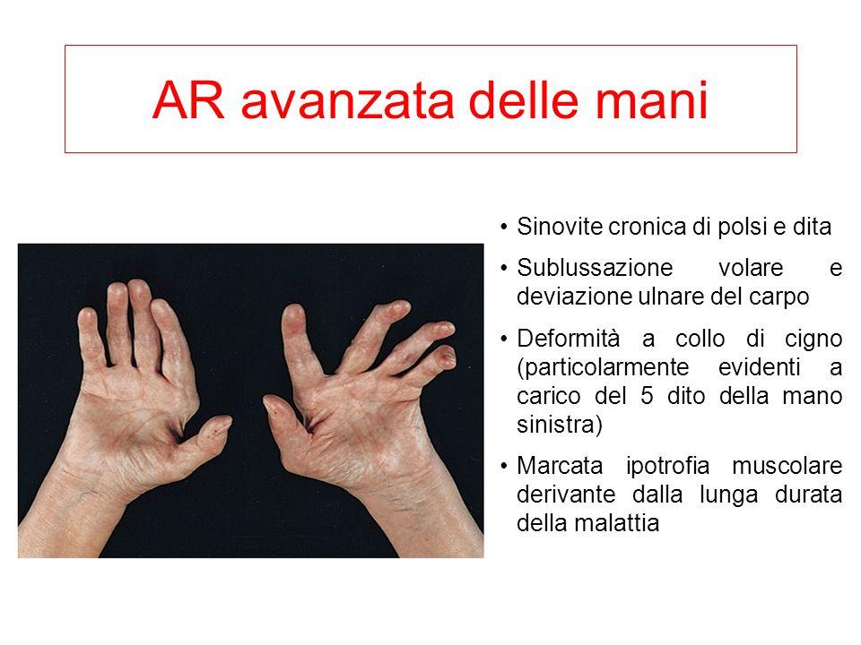 AR avanzata delle mani Sinovite cronica di polsi e dita Sublussazione volare e deviazione ulnare del carpo Deformità a collo di cigno (particolarmente