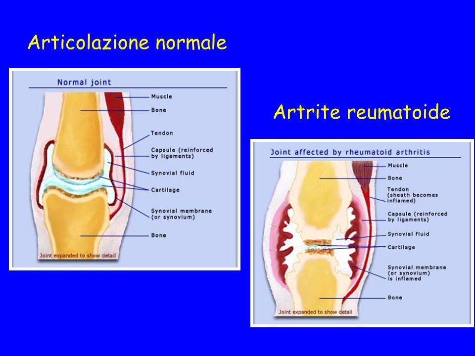 Articolazione normale Artrite reumatoide