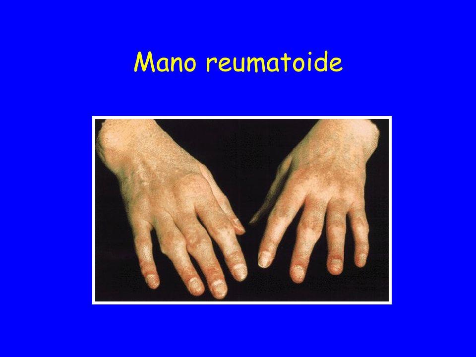Mano reumatoide
