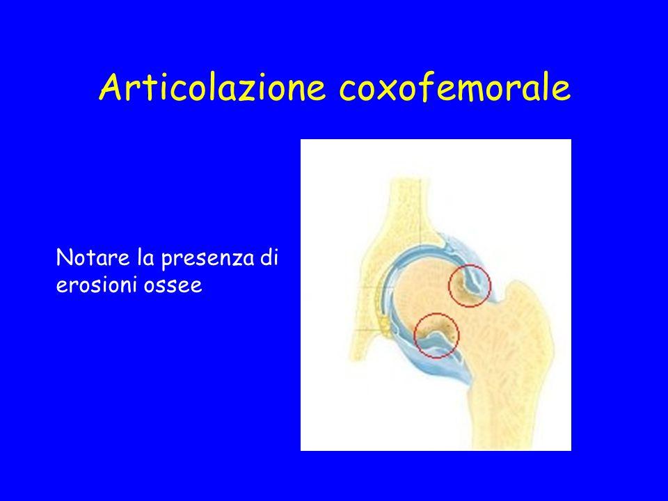 Articolazione coxofemorale Notare la presenza di erosioni ossee