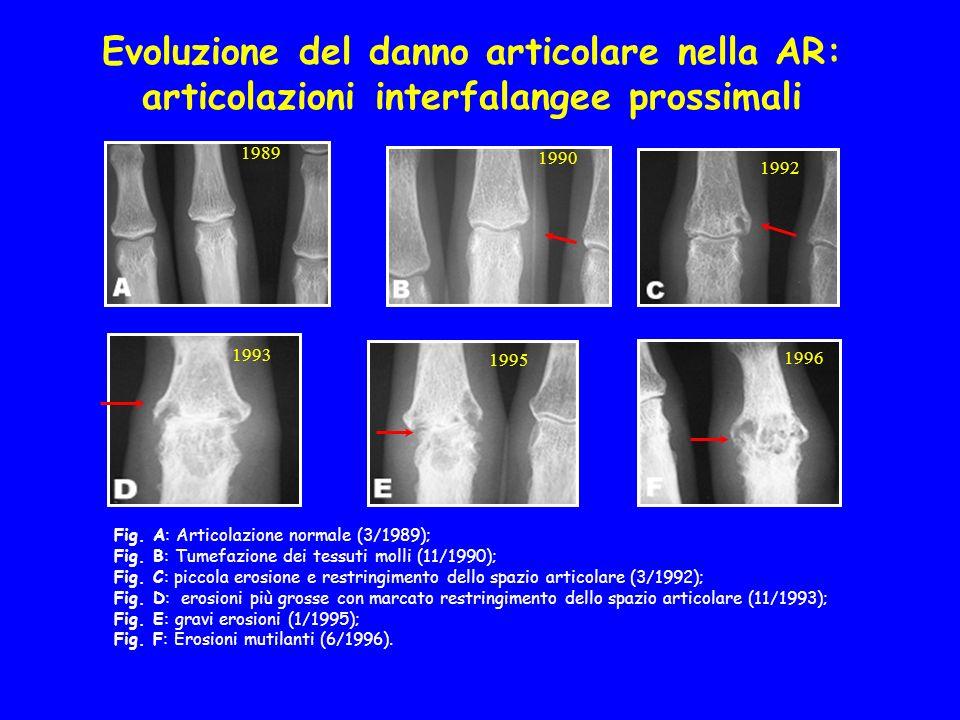 Evoluzione del danno articolare nella AR: articolazioni interfalangee prossimali Fig. A: Articolazione normale (3/1989); Fig. B: Tumefazione dei tessu