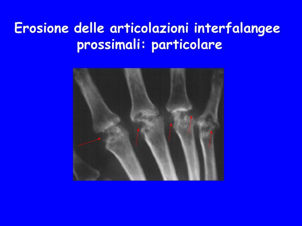 Erosione delle articolazioni interfalangee prossimali: particolare
